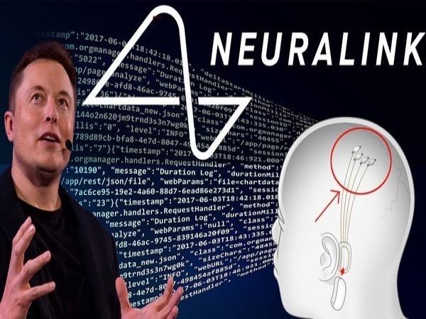 Neuralink联合创始人Max Hodak离职